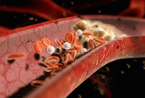 Plaque Buildup in Artery